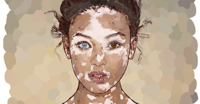 How South Asian Women With Vitiligo Have It Harder Feminism In India