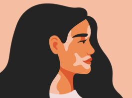 On World Vitiligo Day, A Leap Towards Progressive Consciousness-Raising